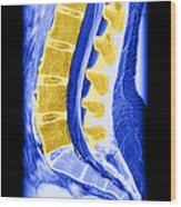 Normal Lumbar Spine Wood Print