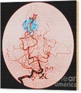 Occipital Lobe Avm Wood Print