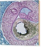 Schistosoma Mansoni Wood Print