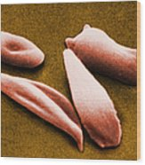 Sickle Red Blood Cells Wood Print by Omikron
