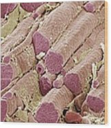 Skeletal Muscle Fibres, Sem Wood Print
