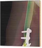 Snapped Plate On Broken Arm, X-ray Wood Print