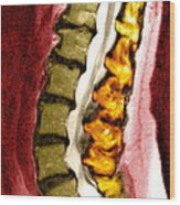 Spine Degeneration, Mri Scan Wood Print by Du Cane Medical Imaging Ltd