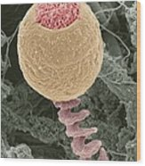 Vorticella Protozoan, Sem Wood Print by Steve Gschmeissner