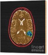 Mri Of Brain Avm Wood Print