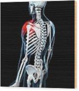 Shoulder Pain, Conceptual Artwork Wood Print by Sciepro