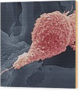 Cervical Cancer Cell, Sem Wood Print by Steve Gschmeissner