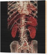 Aortic Aneurysm Ct Scan Wood Print