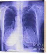 Chest X-ray Of Female Wood Print