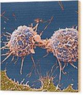 Coloured Sem Of Cervical Cancer Cells Dividing Wood Print
