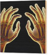 Coloured X-ray Of Healthy Human Hands Wood Print