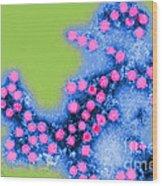 Coxsackie B4 Virus, Tem Wood Print