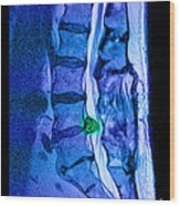 Herniated Disc Wood Print by Medical Body Scans