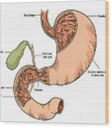 Illustration Of Stomach And Duodenum Wood Print