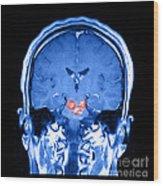 Mri Brainstem Cavernous Malformations Wood Print