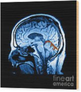 Mri Of Alcoholism Related Vermian Wood Print
