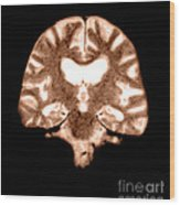 Mri Of Brain With Alzheimers Disease Wood Print