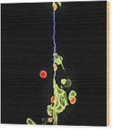 Neutrophils And Anthrax Bacteria, Sem Wood Print