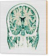 Normal Coronal Mri Of The Brain Wood Print
