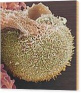 Urine Infection, Sem Wood Print