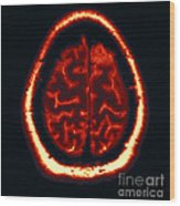 Mri Of Normal Brain Wood Print