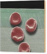 Red Blood Cells, Sem Wood Print