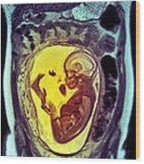 9 Month Foetus, Mri Scan Wood Print