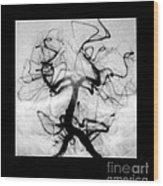 Angiogram Of Embolus In Cerebral Artery Wood Print