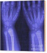 Broken Wrist Wood Print by Ted Kinsman