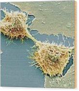 Dividing Hela Cells, Sem Wood Print