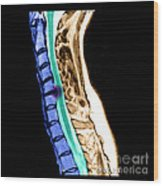 Herniated Disc In Cervical Spine Wood Print