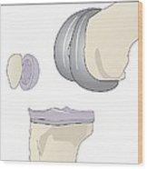 Knee Replacement, Artwork Wood Print by Peter Gardiner