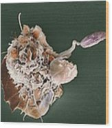 Macrophage Attacking A Foreign Body, Sem Wood Print