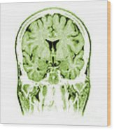 Normal Coronal Mri Of The Brain Wood Print by Medical Body Scans