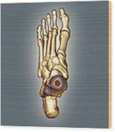 Normal Foot, 3d Ct Scan Wood Print