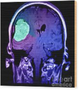 Right Sided Meningioma Wood Print