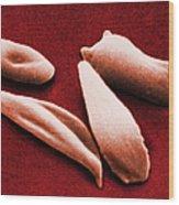 Sickle Red Blood Cells Wood Print