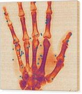 X-ray Of Gunshot In The Hand Wood Print