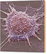 Cervical Cancer Cell, Sem Wood Print