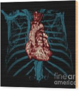 3d Ct Reconstruction Of Heart Wood Print