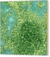 Hepatitis B Tem Wood Print