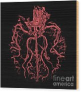 Intracranial Ct Angiogram Wood Print