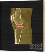 Knee Showing Osteoporosis Wood Print