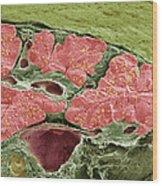 Pancreas Tissue, Sem Wood Print