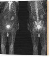 Bone Scan Wood Print by Medical Body Scans