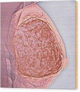 Breast Tumour, X-ray Wood Print