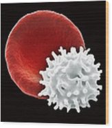 Healthy And Crenated Red Blood Cells, Sem Wood Print