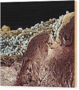 Pyoderma Skin Disease, Sem Wood Print by Steve Gschmeissner