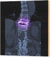Severe Osteoporosis Wood Print