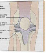 Knee Replacement, Artwork Wood Print